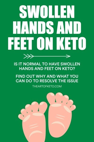 Swollen hands and feet on keto