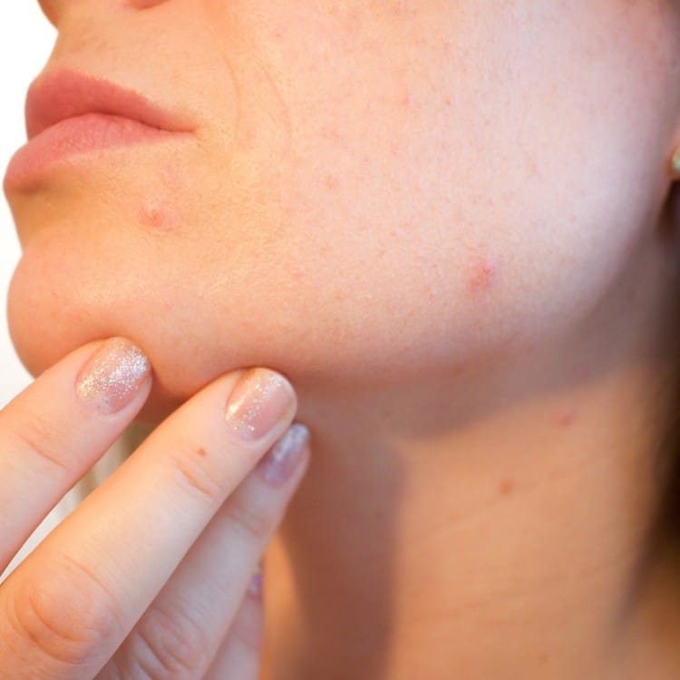 Can diet soda cause acne